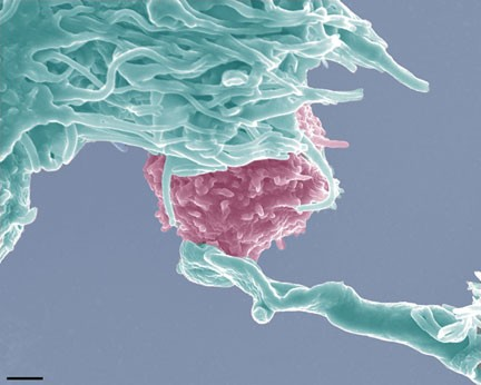 Dendritic Cell Immunotherapy Cancer Dendritic Cell